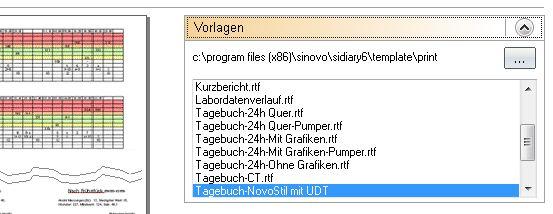 UDT-Ausdruck wählen